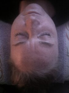 After 1 session of Energetic Facelift